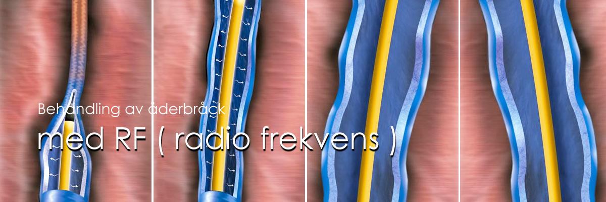 radio frekvens